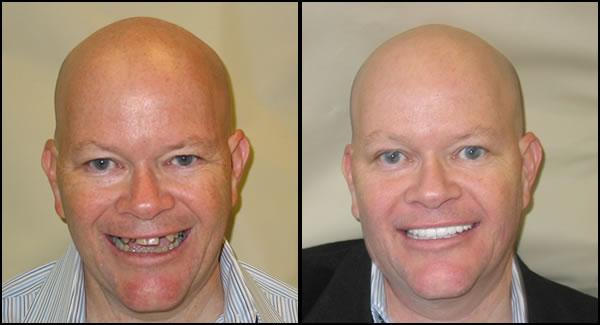Before Dental Implants and Porcelain Veneers - After Dental Implants and Porcelain Veneers