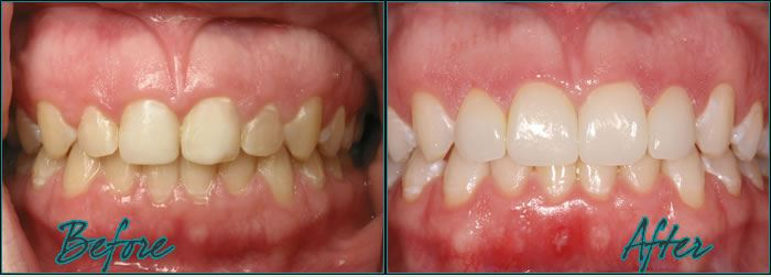 Dr. Burton Veneers front teeth discolored
